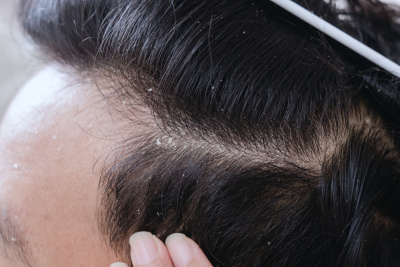 images how to get rid of dandruff dandruff